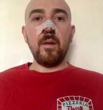 У Познані жорстоко побили українського актора