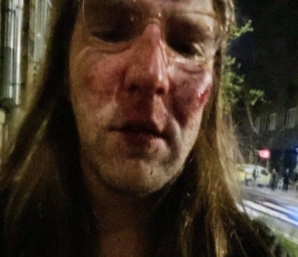 Скандал: в Польщі жорстоко побили українця, а поліція відмовилась його приймати [+ФОТО]